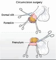 RISKS VS. BENEFITS OF INFANT CIRCUMCISION