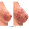 breast-tissue